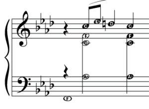 Alphanote music notation